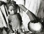 Barry Thumma - Young Ethiopian Child Caught in Famine in Ethiopia Click for more Images